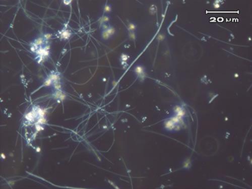バルキング状態の糸状菌
